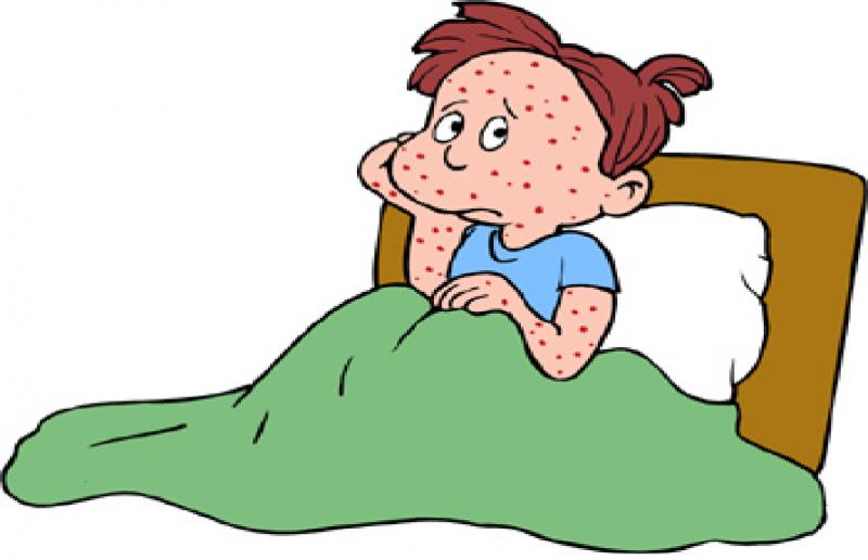 الحصبة ما هي أسباب و أعراض الحصبة و كيفية الوقاية و العلاج و هل هي معدية ؟