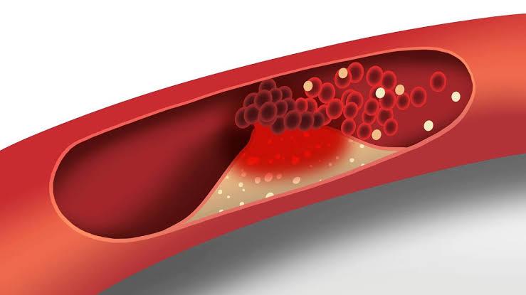 فوائد الخردل الصحية يقلل من نسبة الكوليسترول في الدم