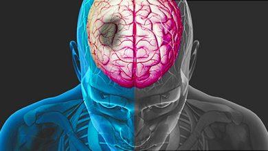 Photo of السكتة الدماغية
