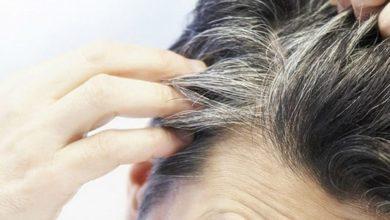 Photo of الشيب : أسباب ظهور الشعر الأبيض، و الطرق الطبيعية للتخلص منه