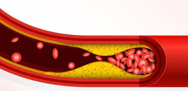 المشروم يقلل نسبة الكوليسترول