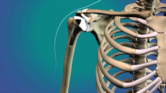 حبوب القطيفة تعزز صحة العظام