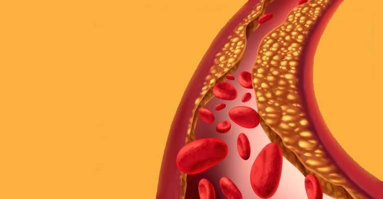 خل التفاح يقلل نسبة الكوليسترول في الدم