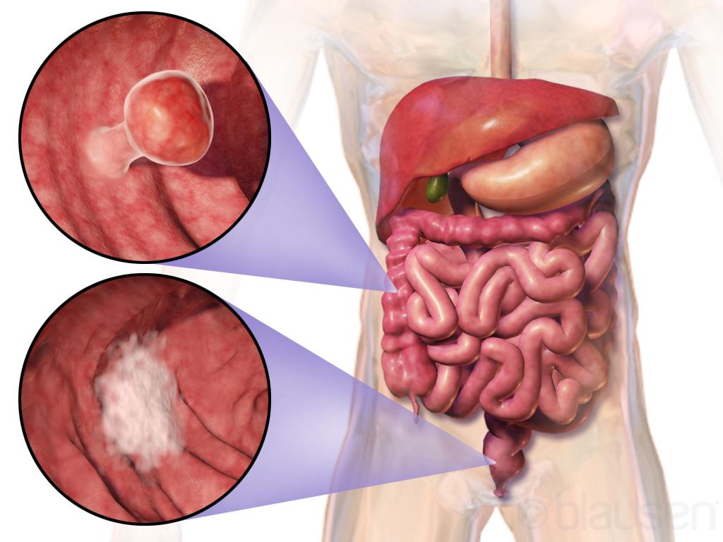 سرطان الأمعاء
