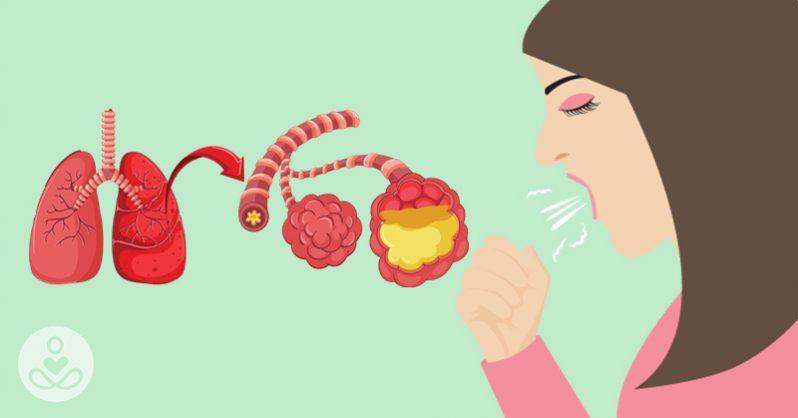 أعراض مرض كورونا