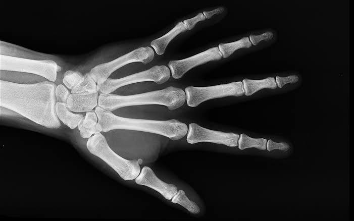 الفوائد الصحية لسمك السردين : يعزز صحة العظام
