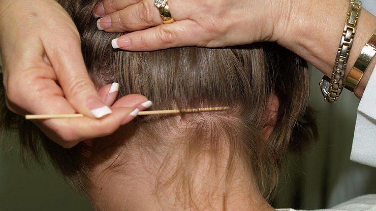 طرق التخلص من قمل الشعر
