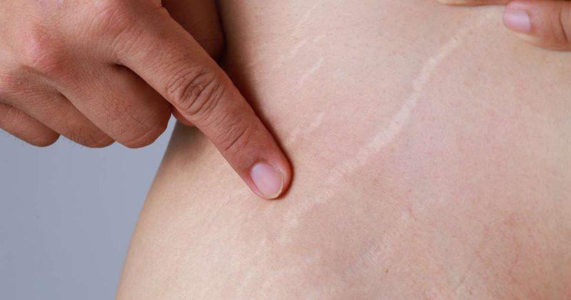 علاج علامات تمدد الجلد