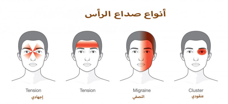 أنواع صداع الرأس