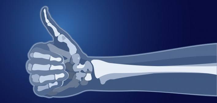 صحة العظام
