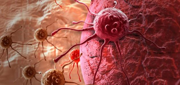 ما هو السرطان