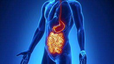 ما هو الغذاء المسموح به عند الإصابة بارتجاع المريء أو قرحة المعدة؟