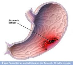 ما هي طرق علاج مرض سرطان الأمعاء