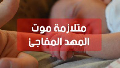 Photo of متلازمة موت المهد المفاجئ : أسباب موت المهد المفاجئ و منع حدوثه