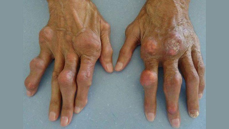 كيفية علاج مرض النقرس