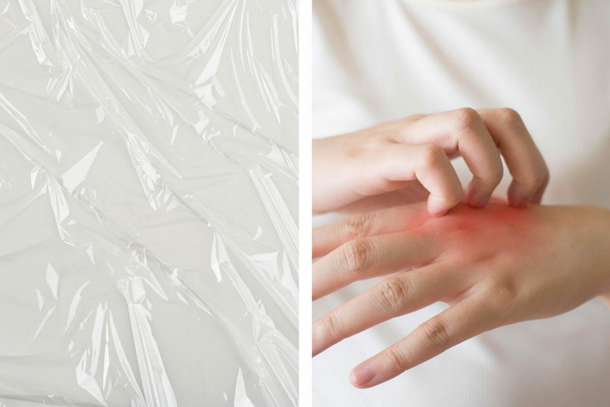 يساعد غلاف الطعام البلاستيكي في زيادة فاعلية علاج الصدفية