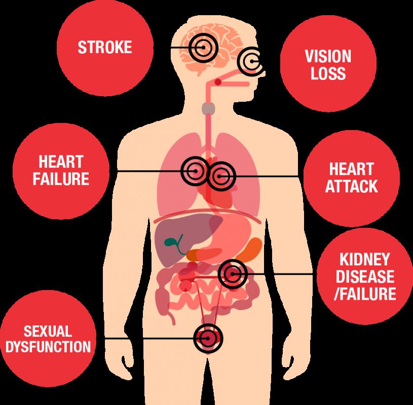 أسباب ضغط الدم المرتفع