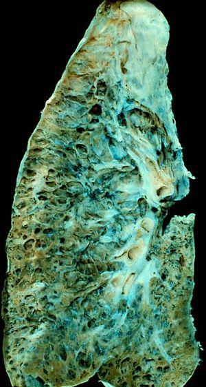 الالتهاب الرئوي الغير ميكروبي