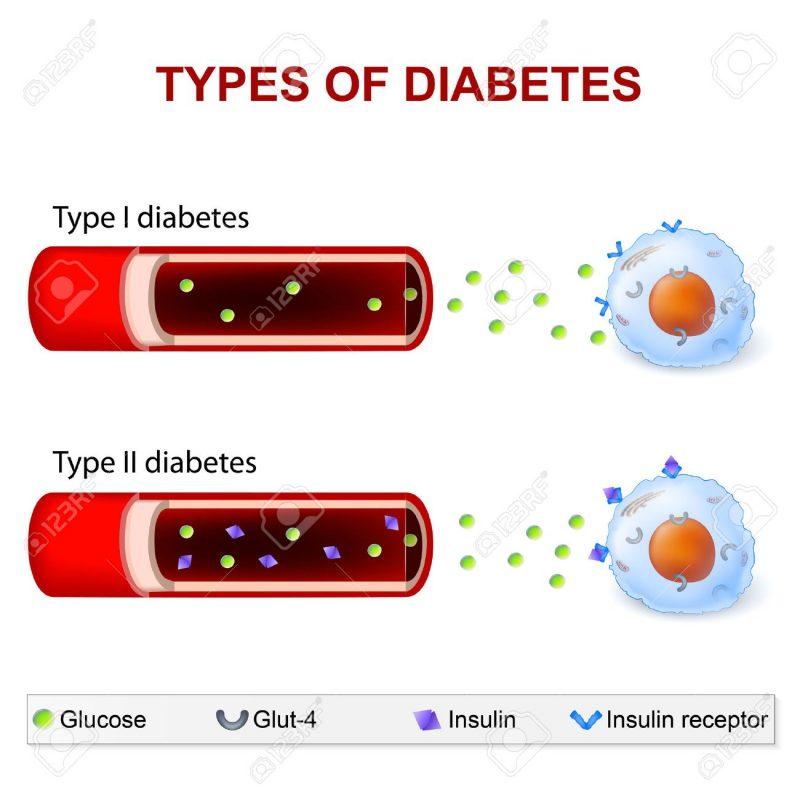 أنواع مرض السكر