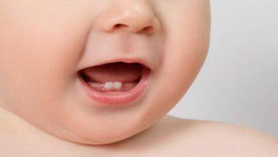 Photo of ما هي اعراض التسنين لطفلك ؟؟ وما الذي يجب عليكي فعله ؟؟