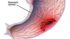 Photo of ما طرق علاج مرض سرطان الأمعاء وكيفية الوقايه منه ؟؟