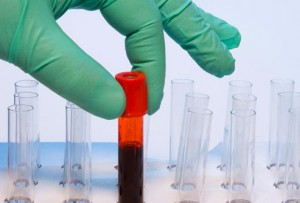 getty_rf_photo_of_blood_samples