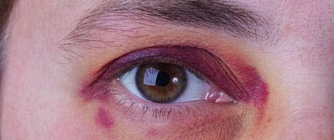 الاسعافات الأولية في حالات كدمة العين