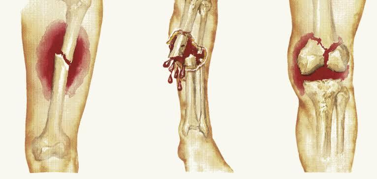 أسعافات حالات كسر العظام