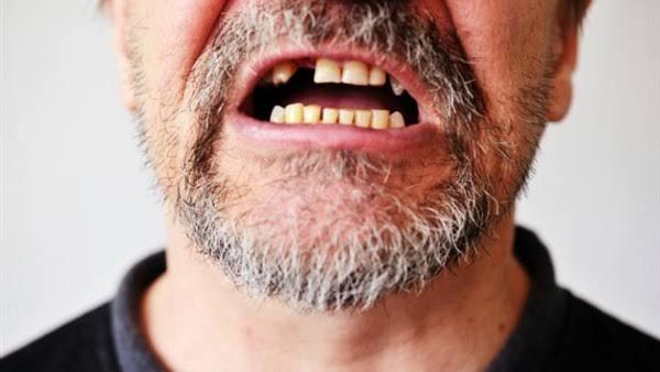 يمنع فيتامين دال تساقط الأسنان