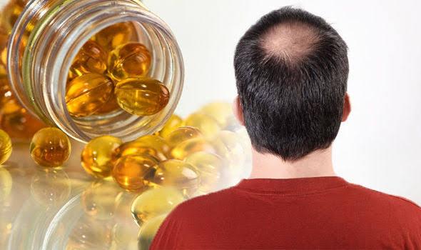 نقص فيتامين (د) و تساقط الشعر