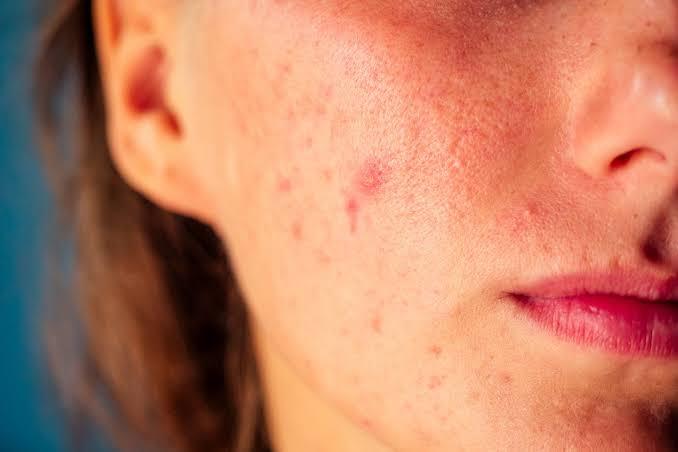 حمض الفوليك يعمل علي علاج حب الشباب و بقع الوجه