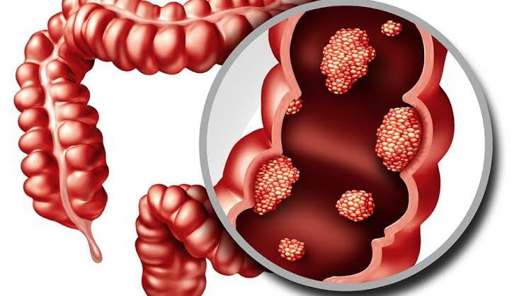 الوقاية من سرطان القولون و المستقيم