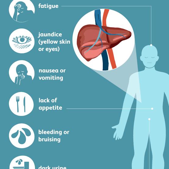 أعراض فيروس سي