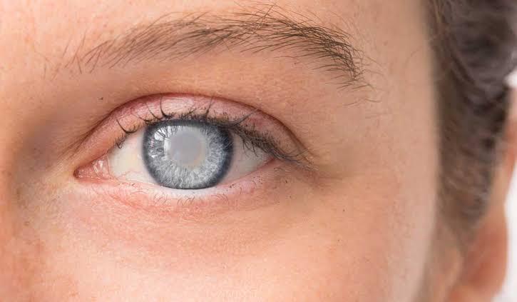 يقي فيتامين سي من اعتام عدسة العين