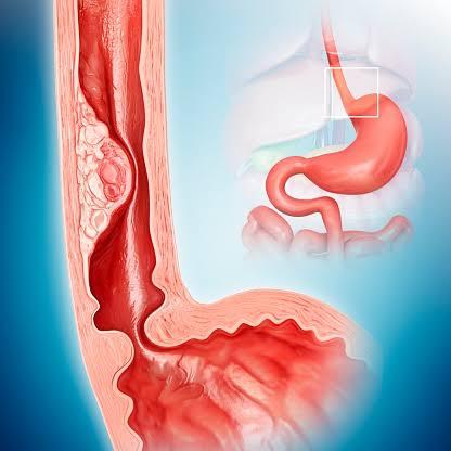 يخفض فيتامين سي من خطر الإصابة بسرطان المرئ
