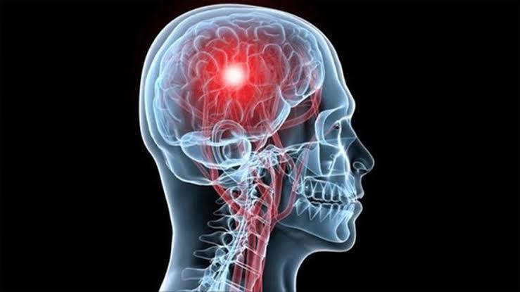 التعافي من السكتة الدماغية