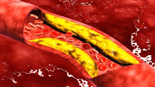 خفض مستوي الكوليسترول